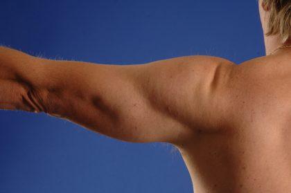 VASER Hi Def Liposuction Before & After Patient #5190
