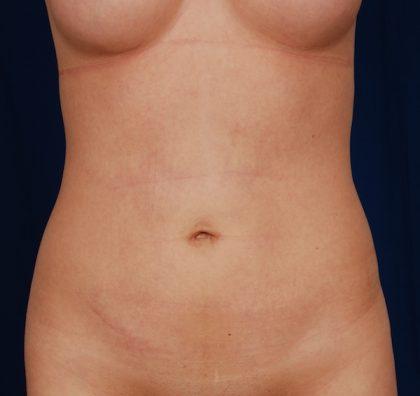 VASER Hi Def Liposuction Before & After Patient #5202