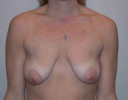 Breast Lift Before & After Patient #5274