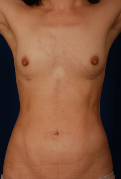 VASER Hi Def Liposuction Before & After Patient #5283