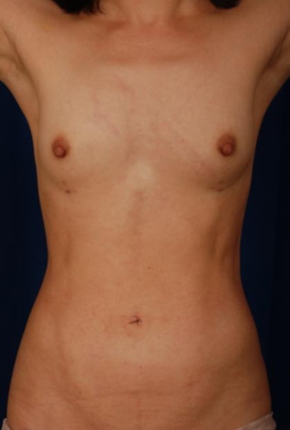 VASER Hi Def Liposuction Before & After Patient #5283