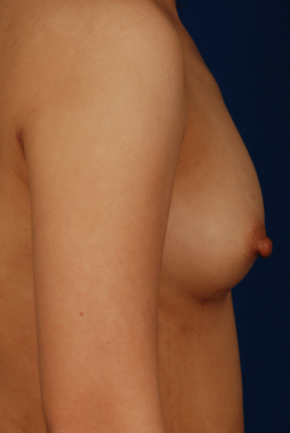 Breast Fat Transfer Before & After Patient #5290