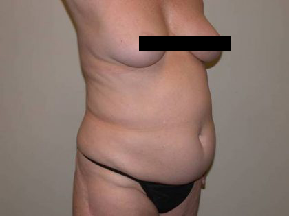 Standard Liposuction Before & After Patient #5328