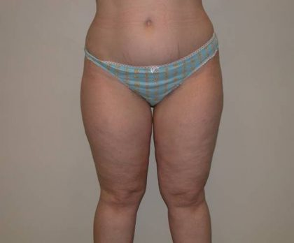 Legs Liposuction Before & After Patient #5335
