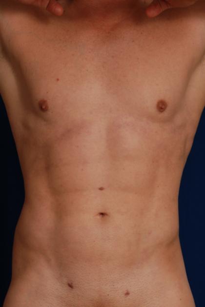 Patient 5336 Vaser Hi Def Liposuction Before And After Photos Denver Plastic Surgery Gallery Dr John Millard