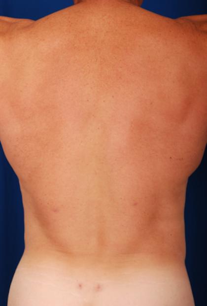 VASER Hi Def Liposuction Before & After Patient #5342