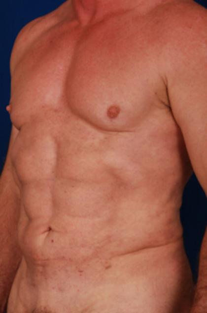 VASER Hi Def Liposuction Before & After Patient #5341