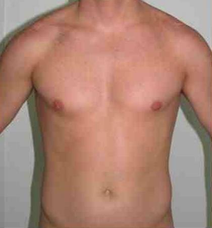 VASER Hi Def Liposuction Before & After Patient #5356