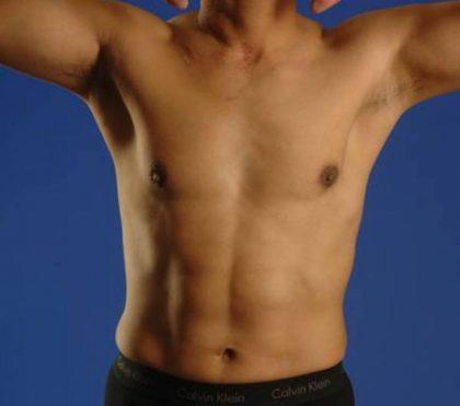 VASER Hi Def Liposuction Before & After Patient #5368