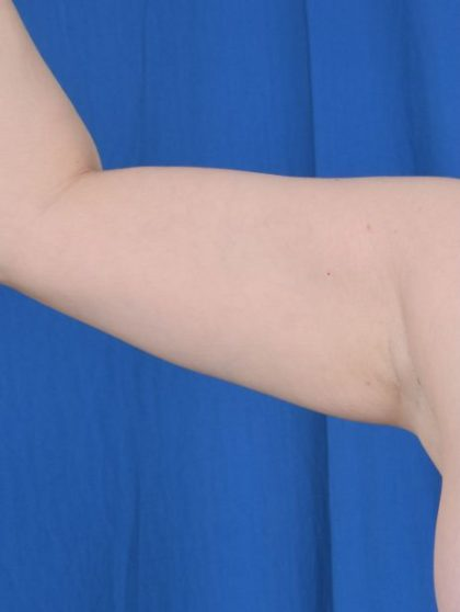 Arms Liposuction Before & After Patient #5439