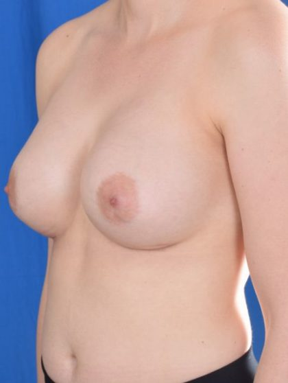 Breast Augmentation Before & After Patient #5442
