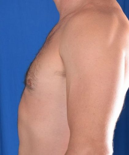 Gynecomastia Before & After Patient #5447