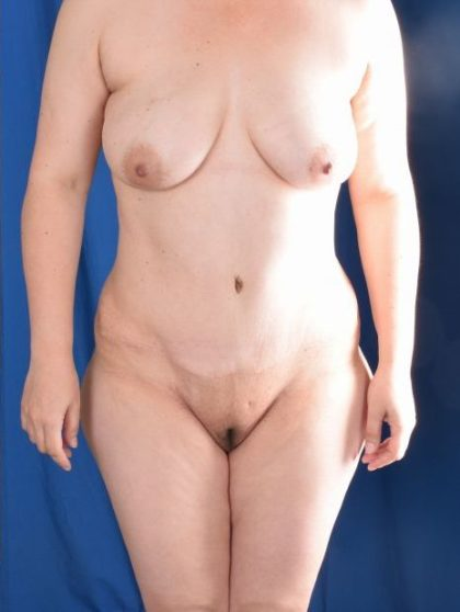 Tummy Tuck Before & After Patient #5452