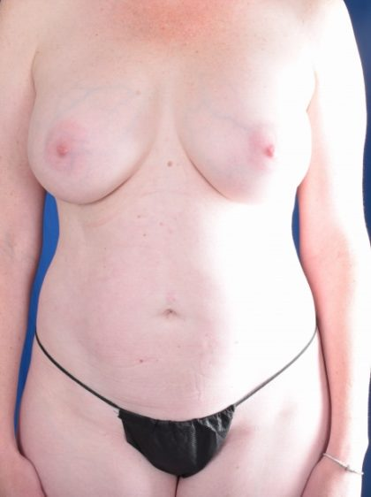 Breast Augmentation Before & After Patient #5558