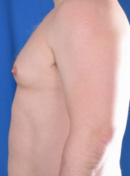 Gynecomastia Before & After Patient #5589