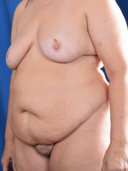 Tummy Tuck Before & After Patient #5606