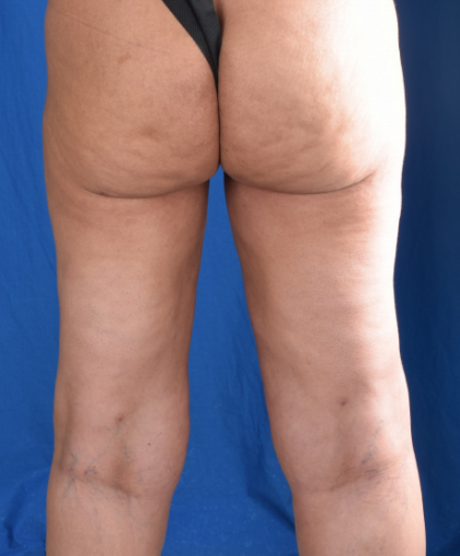 Legs Liposuction Before & After Patient #5695