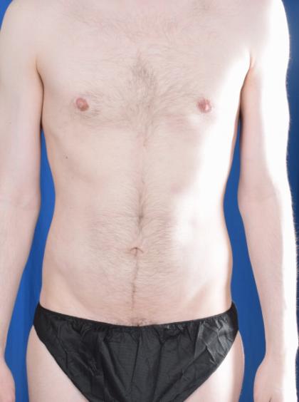 VASER Hi Def Liposuction Before & After Patient #5703