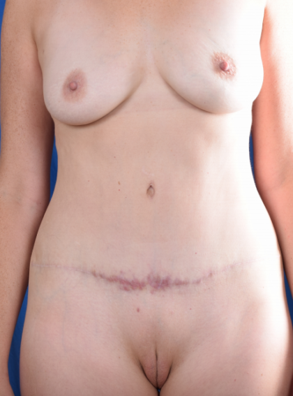 Tummy Tuck Before & After Patient #5662