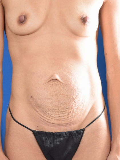 Tummy Tuck Before & After Patient #5670