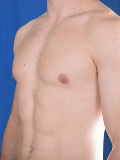 Gynecomastia Before & After Patient #5683