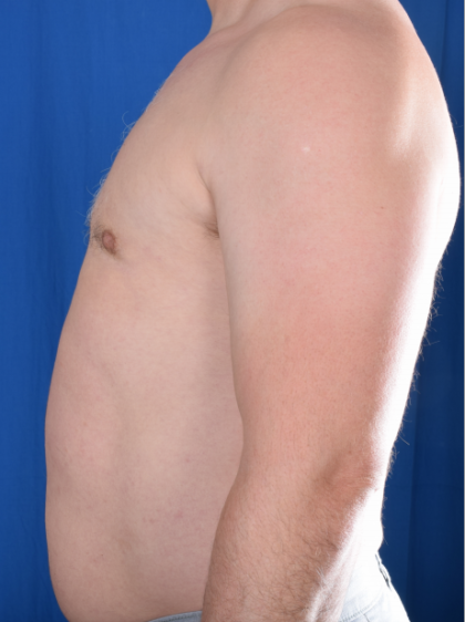 Gynecomastia Before & After Patient #5825