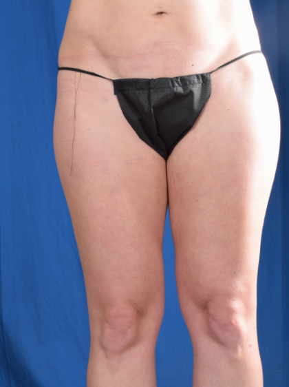 Legs Liposuction Before & After Patient #5830