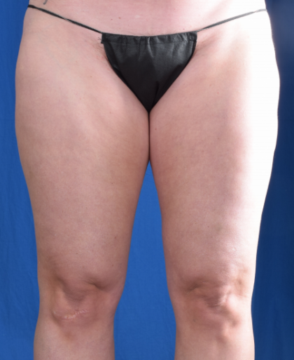 Legs Liposuction Before & After Patient #5835