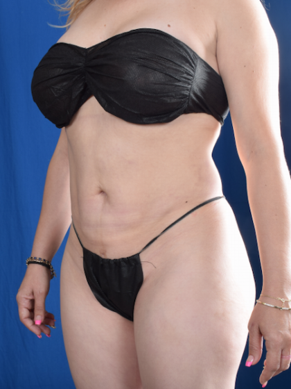 Standard Liposuction Before & After Patient #5844