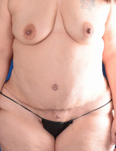 Tummy Tuck Before & After Patient #5850