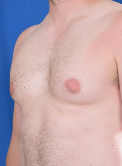 Gynecomastia Before & After Patient #5937