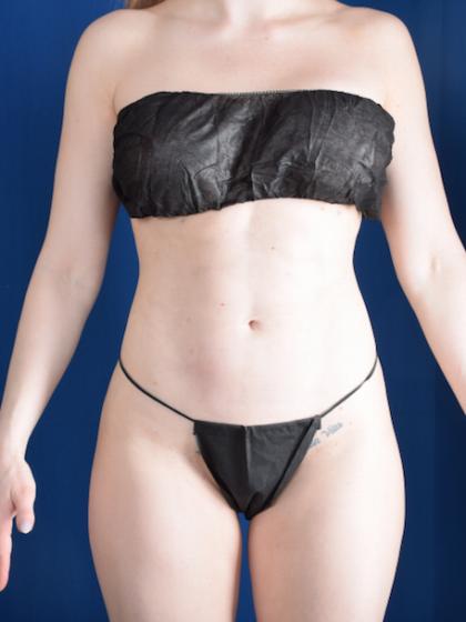 VASER Hi Def Liposuction Before & After Patient #5964