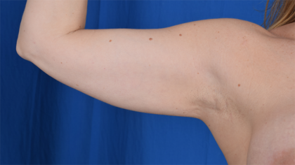 Arms Liposuction Before & After Patient #5984