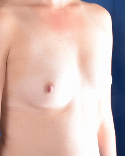 Breast Augmentation Before & After Patient #5989