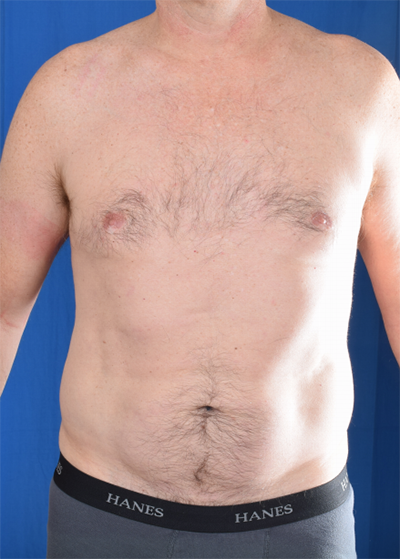Gynecomastia Before & After Patient #6009