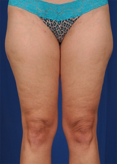 Legs Liposuction Before & After Patient #6016