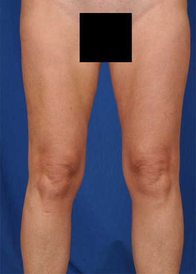 Legs Liposuction Before & After Patient #6025