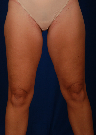 Legs Liposuction Before & After Patient #6030