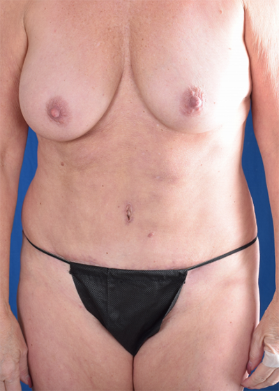 Tummy Tuck Before & After Patient #6056