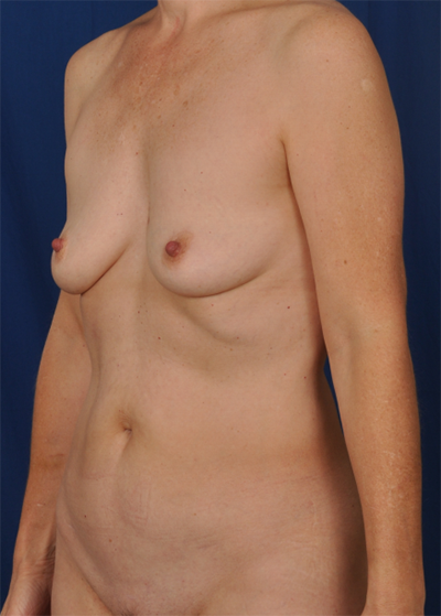 Tummy Tuck Before & After Patient #6067
