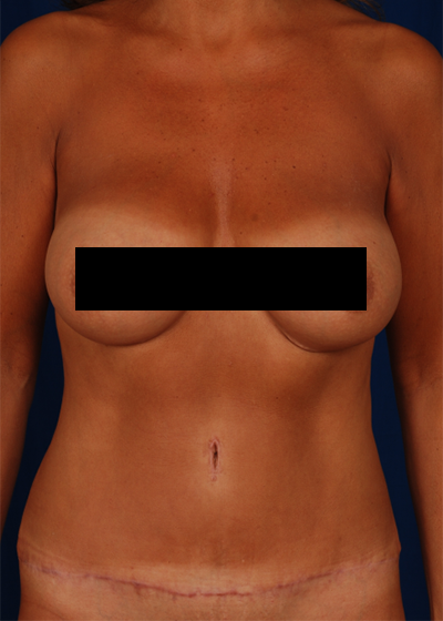 Tummy Tuck Before & After Patient #6072