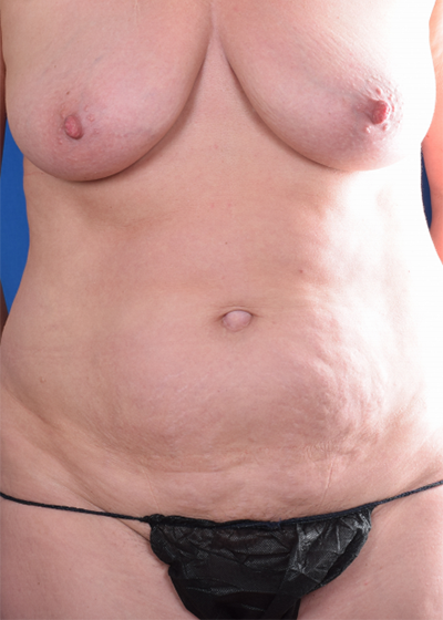 Tummy Tuck Before & After Patient #6079