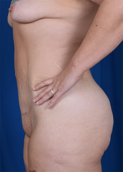 Tummy Tuck Before & After Patient #6086