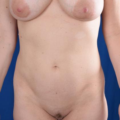 VASER Hi Def Liposuction Before & After Patient #6100