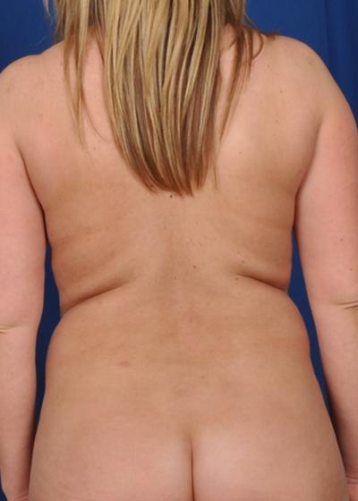 VASER Hi Def Liposuction Before & After Patient #6107