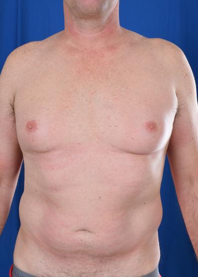 VASER Hi Def Liposuction Before & After Patient #6110