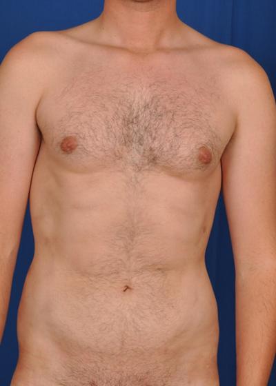 VASER Hi Def Liposuction Before & After Patient #6119