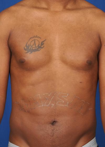 VASER Hi Def Liposuction Before & After Patient #6126