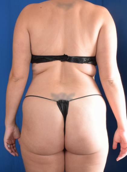 Fat Transfer Before & After Patient #6523