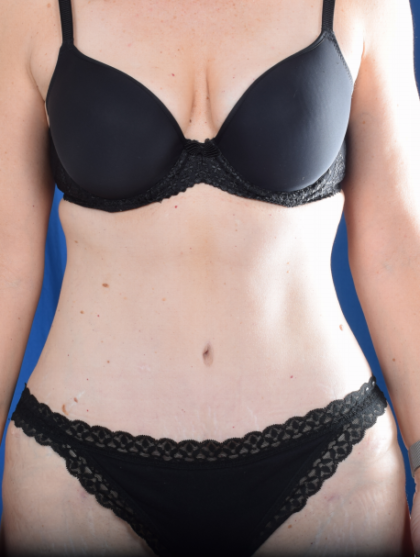 Tummy Tuck Before & After Patient #6468